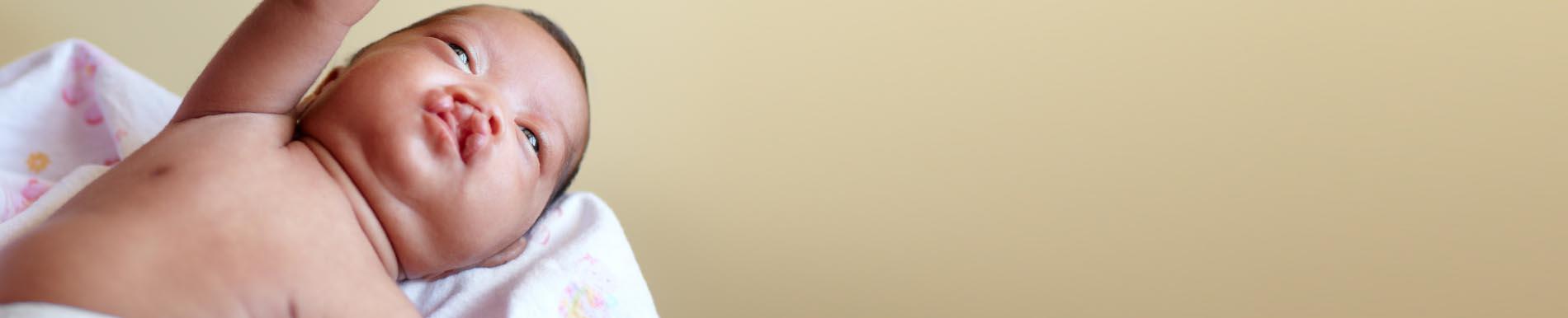 https://www.healthychildren.org/SiteCollectionImage-Homepage-Banners/Cleft_Cranio_Baby_Banner.jpg