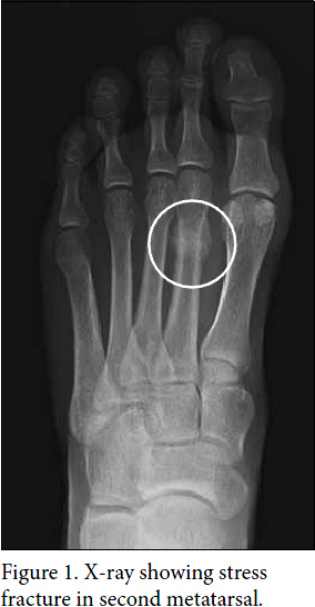 X Ray Broken Foot