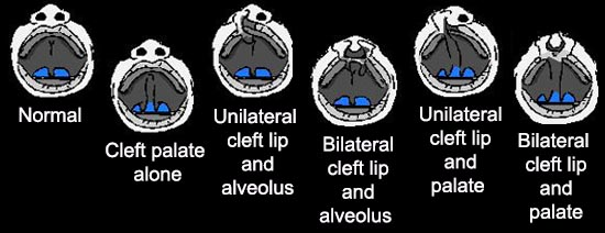 Different Types of Cleft Lip and/or Cleft Palate