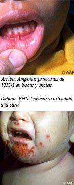 https://www.healthychildren.org/SiteCollectionImagesArticleImages/Images-HSV-blisters_ES2.jpg