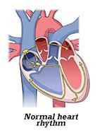 Fast, Slow and Irregular Heartbeats (Arrythmia) - HealthyChildren.org