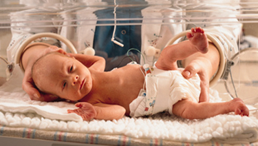 Premature baby in an incubator.