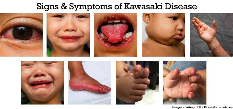 Signs & Symptoms: Kawasaki Disease