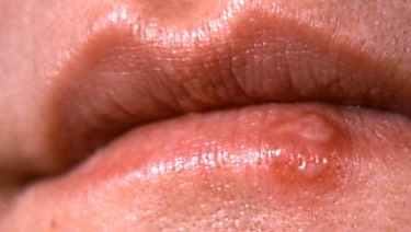 Cold Sores in Children: About the Herpes Simplex Virus ...