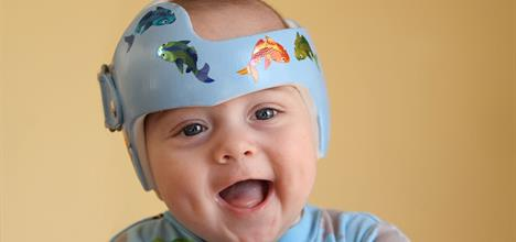 Baby Helmet Therapy: Parent FAQs