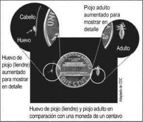 Head Lice - Image