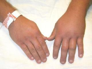 Black wasp sting swelling - photo#26