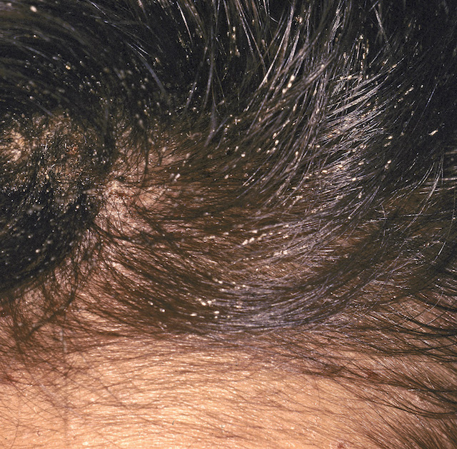 Lice in facial hairs
